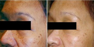 skin-rejuvenation-before-after-1